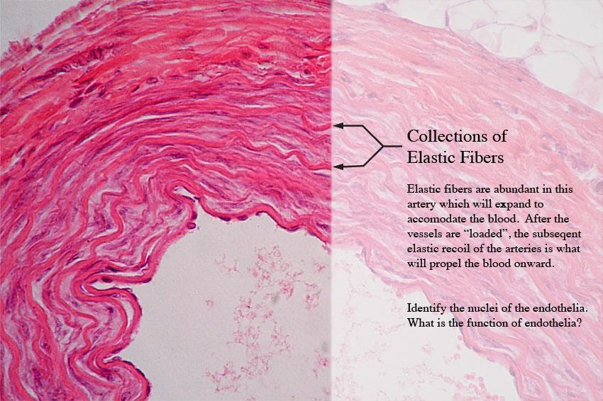 Elastic Connective Tissue Elastic connective tissue